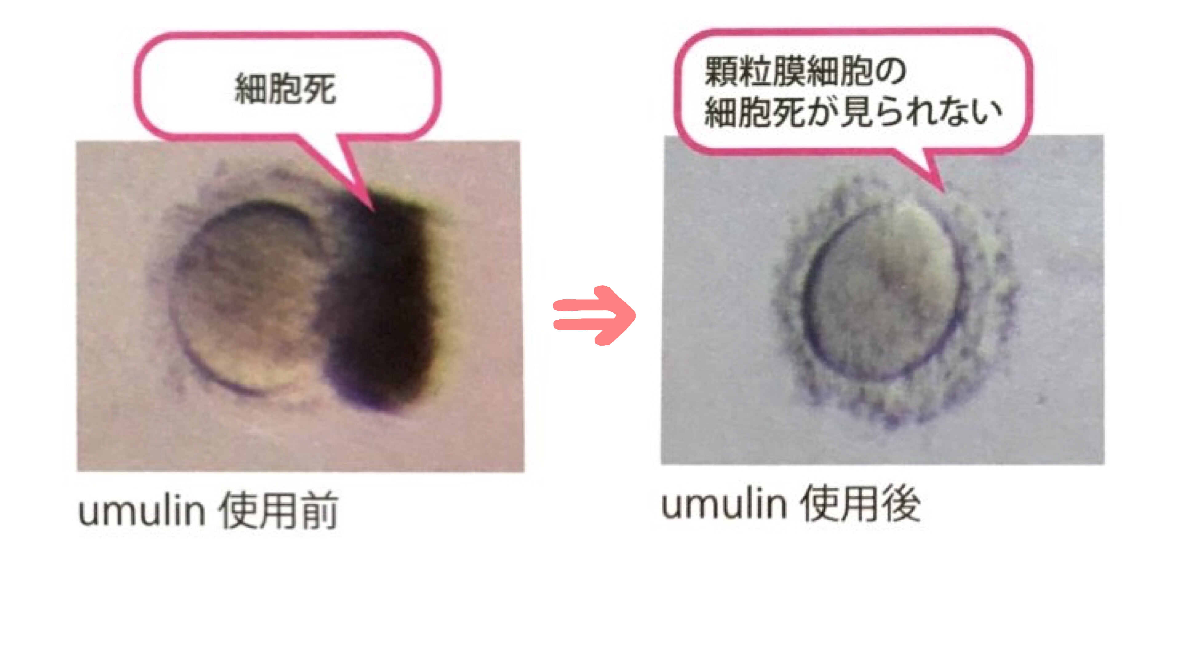 卵子の質&卵子の老化に作用するサプリは「ウムリン」一択!