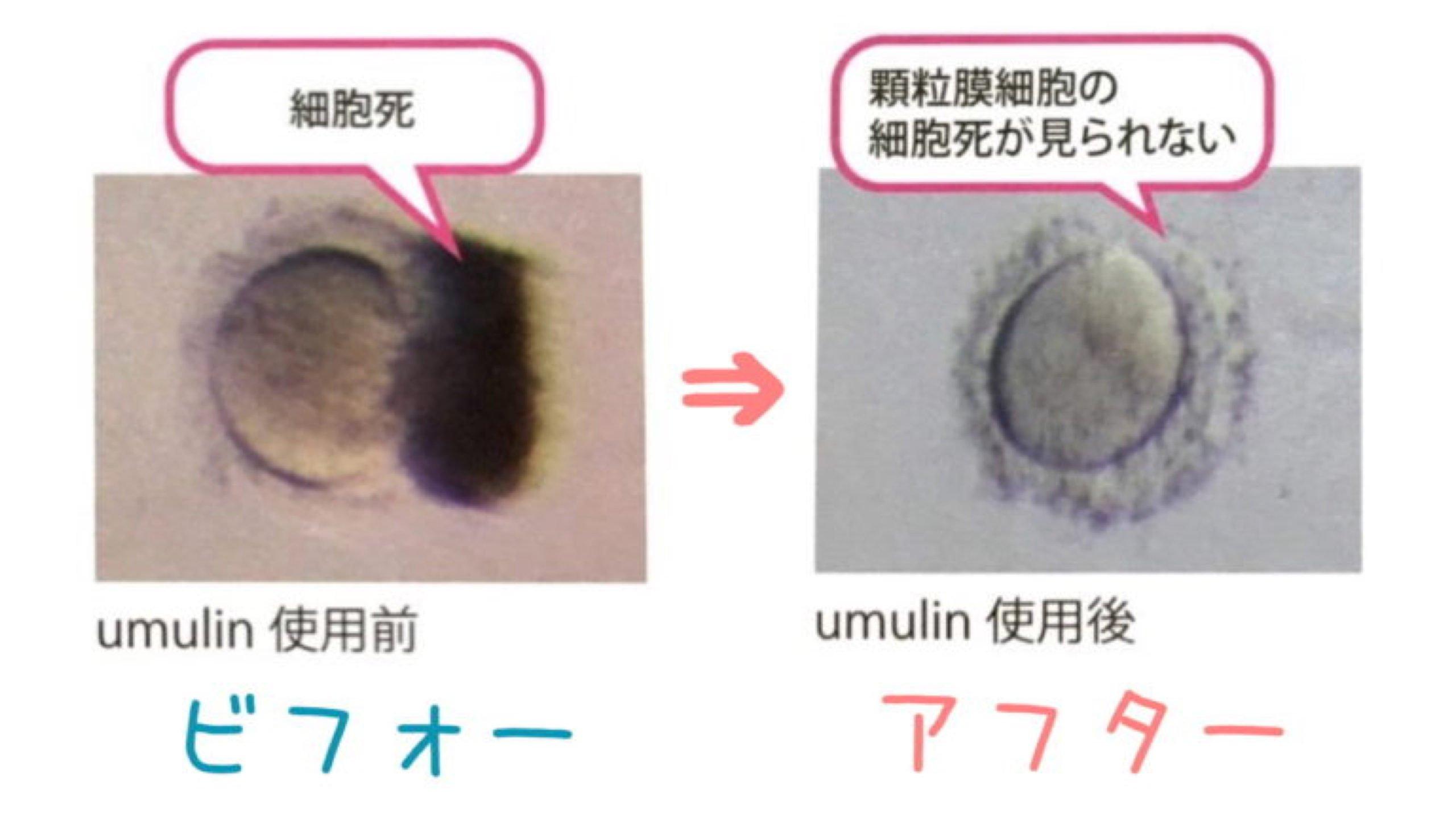 卵子の質を改善するサプリはウムリン一択!医師も認める効果とは?