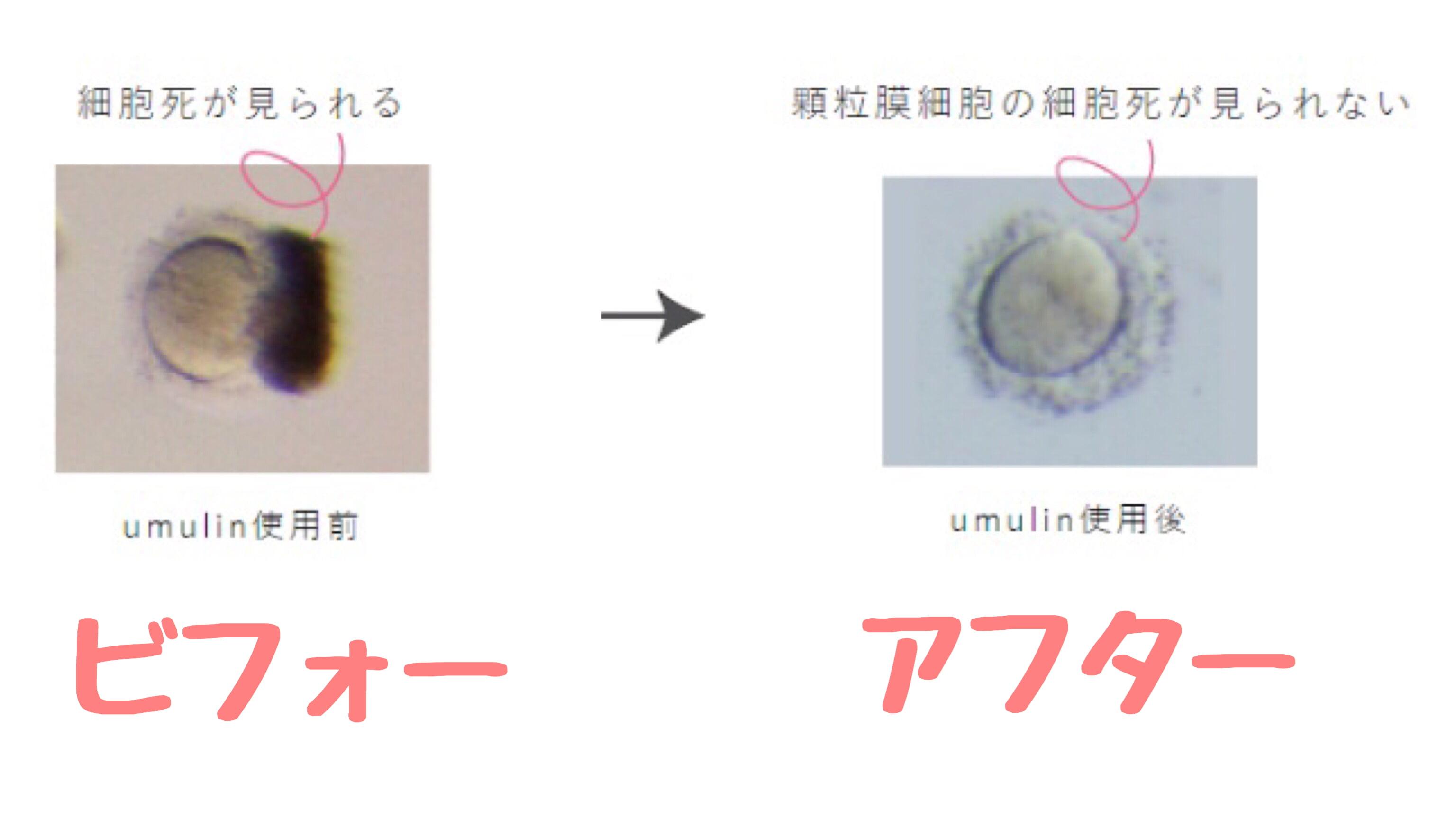 卵子の質を上げるサプリはウムリン一択!医師も認めた妊娠の効果